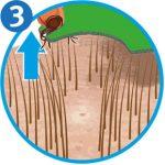 Zecke entfernen: Zeckenkarte Schritt 3