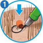 Zecke entfernen: Zeckenschlinge Schritt 1