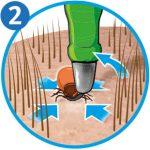 Zecke entfernen: Zeckenschlinge Schritt 2