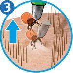 Zecke entfernen: Zeckenschlinge Schritt 3