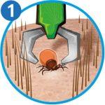 Zecke entfernen: Zeckenzange Schritt 1